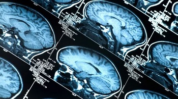 Imagens obtidas em exame de ressonância magnética